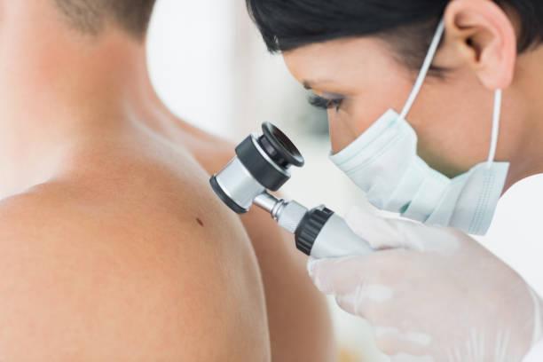 Dermatologist examining mole on patient stock photo
