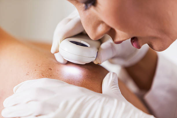 dermatologist examining patient for signs of skin cancer - dermatologist stock pictures, royalty-free photos & images