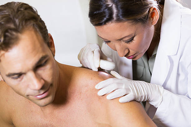 dermatologist examining patient's skin for signs of cancer - dermatologist stock pictures, royalty-free photos & images