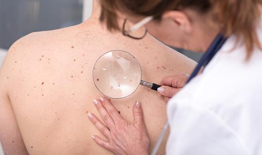 Dermatologen Die Untersuchung Der Haut Eines Patienten Stockfoto und mehr Bilder von Arzt