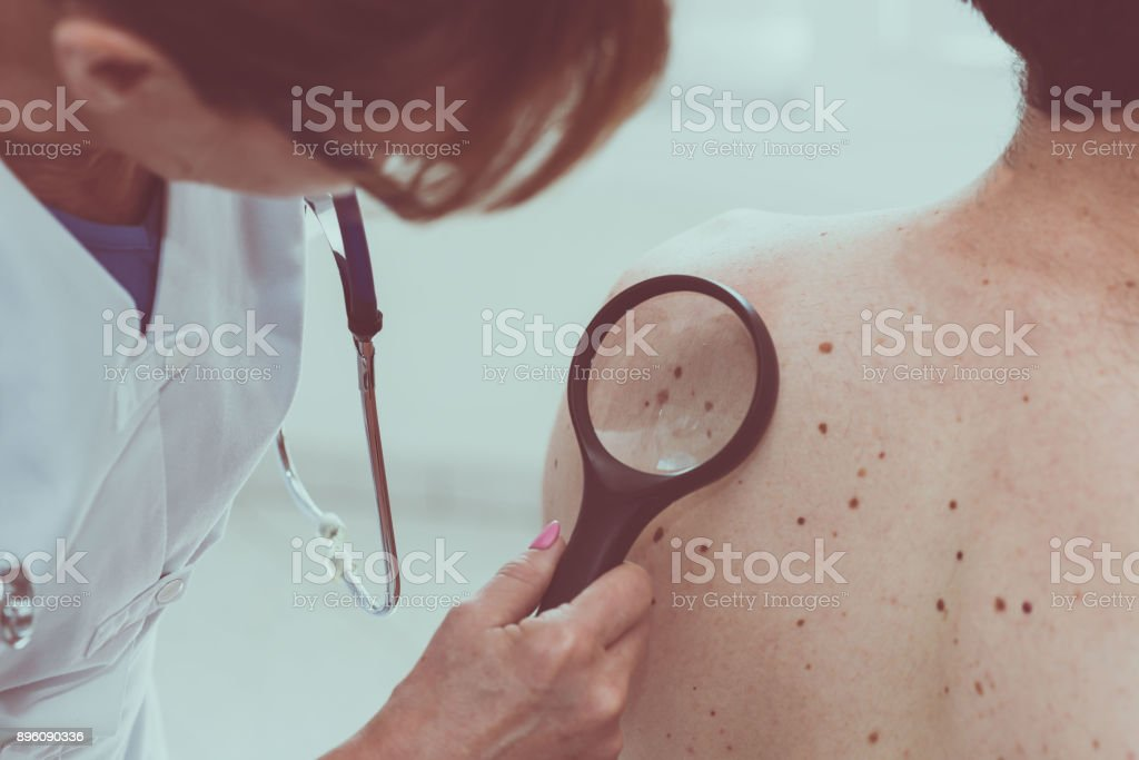 Dermatologist examining the skin of a patient stock photo