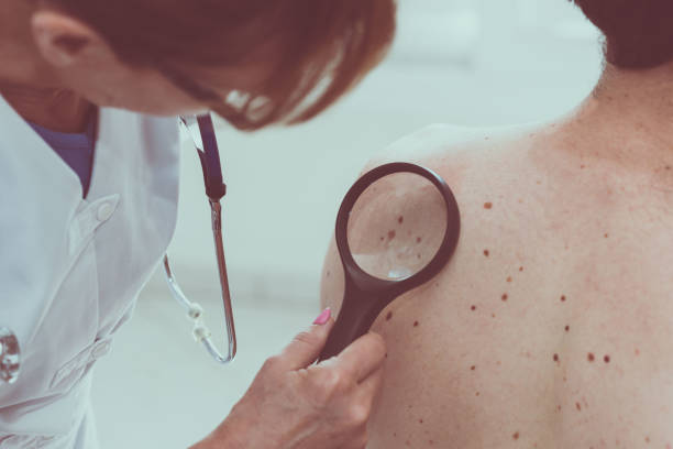dermatologist examining the skin of a patient - dermatologist stock pictures, royalty-free photos & images