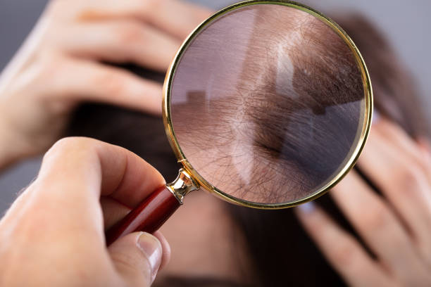 Dermatologist Examining Woman's Hair Dermatologist's Hand Examining Woman's Hair With Magnifying Glass human scalp stock pictures, royalty-free photos & images
