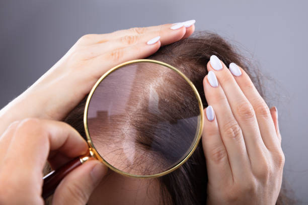 dermatologist examining woman's hair - dermatologist stock pictures, royalty-free photos & images