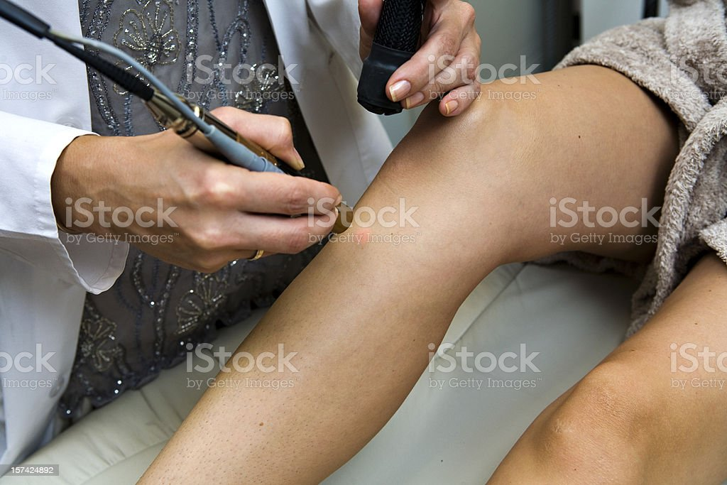 Dermatologist performs laser hair removal stock photo