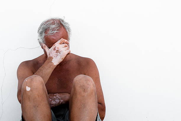 desperate man affected by vitiligo - old man feet stock photos and pictures