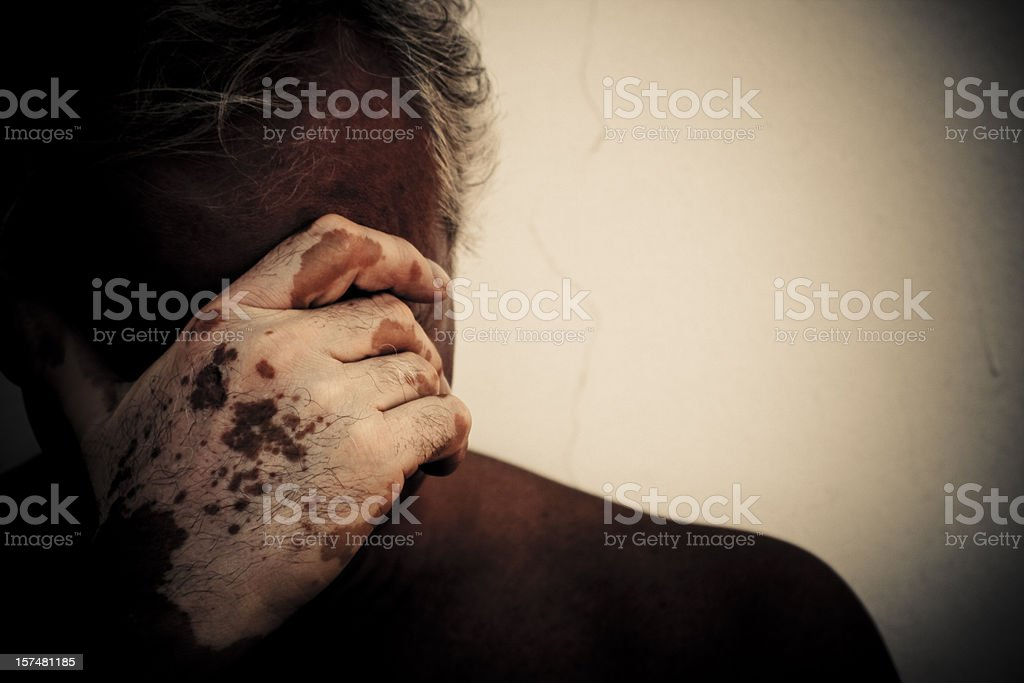 Desperate man affected by vitiligo royalty-free stock photo