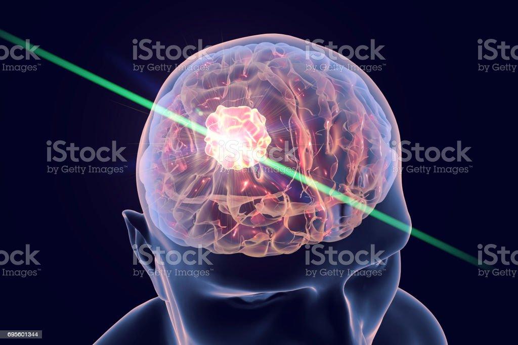 Destruction of brain tumor stock photo