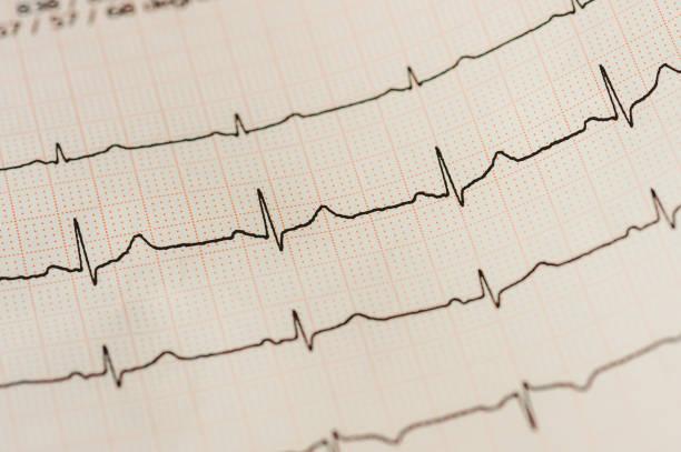 Detail des Kardiogramms (EKG) – Foto