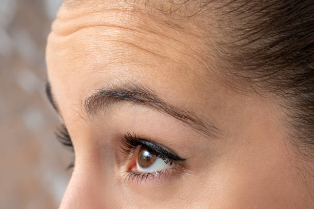 Detail of female frowning forehead . stock photo