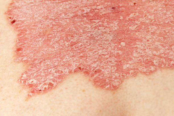 Detail of psoriatic skin disease Psoriasis Vulgaris with narrow focus, skin patches are typically red, itchy, and scaly Detail of psoriatic skin disease Psoriasis Vulgaris with narrow focus, skin patches are typically red, itchy, and scaly psoriasis stock pictures, royalty-free photos & images