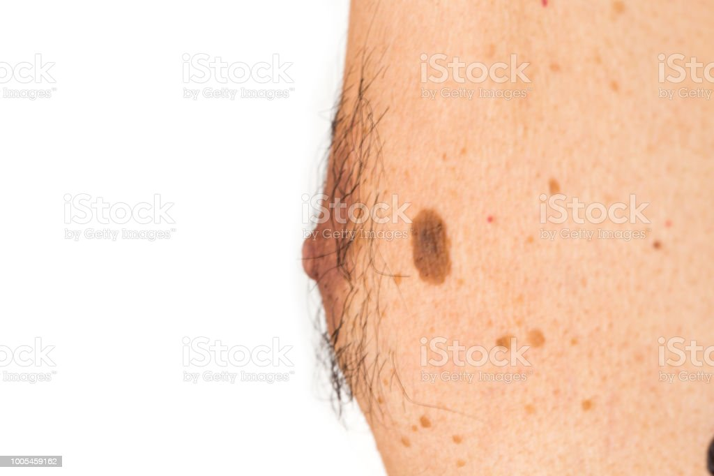 Detail of the bare skin on man in the back, Disorders of body with moles on skin growths include warts lot of wart, mole, birthmark, wart, gnarl, wart, Skin problems, Sun effect on skin. stock photo