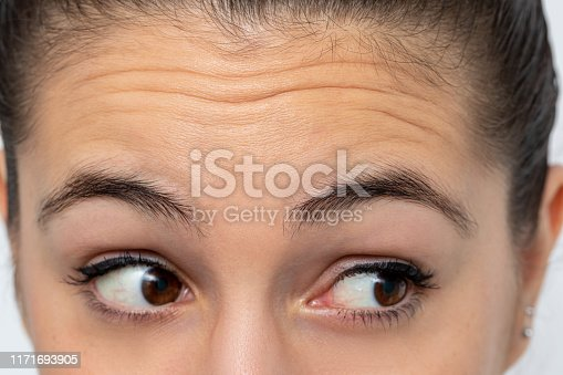 Close up detail of woman looking aside frowning forehead. Prominent wrinkles shown on skin.