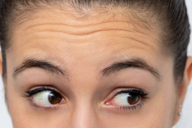 Detail of woman looking aside frowning forehead. stock photo