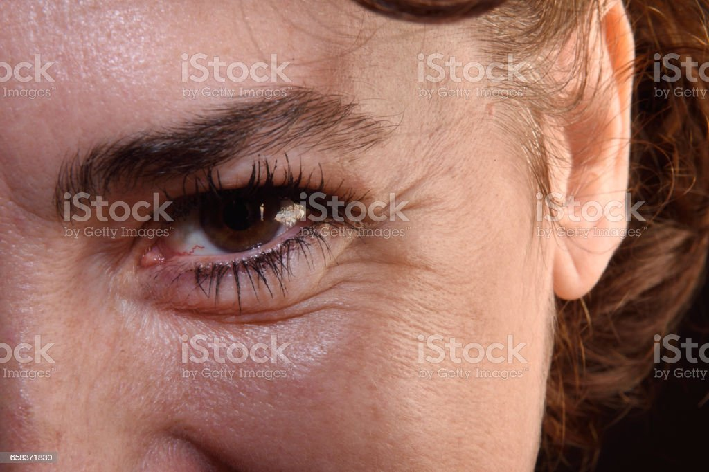Detail of wrinkles in a woman\'s eyes