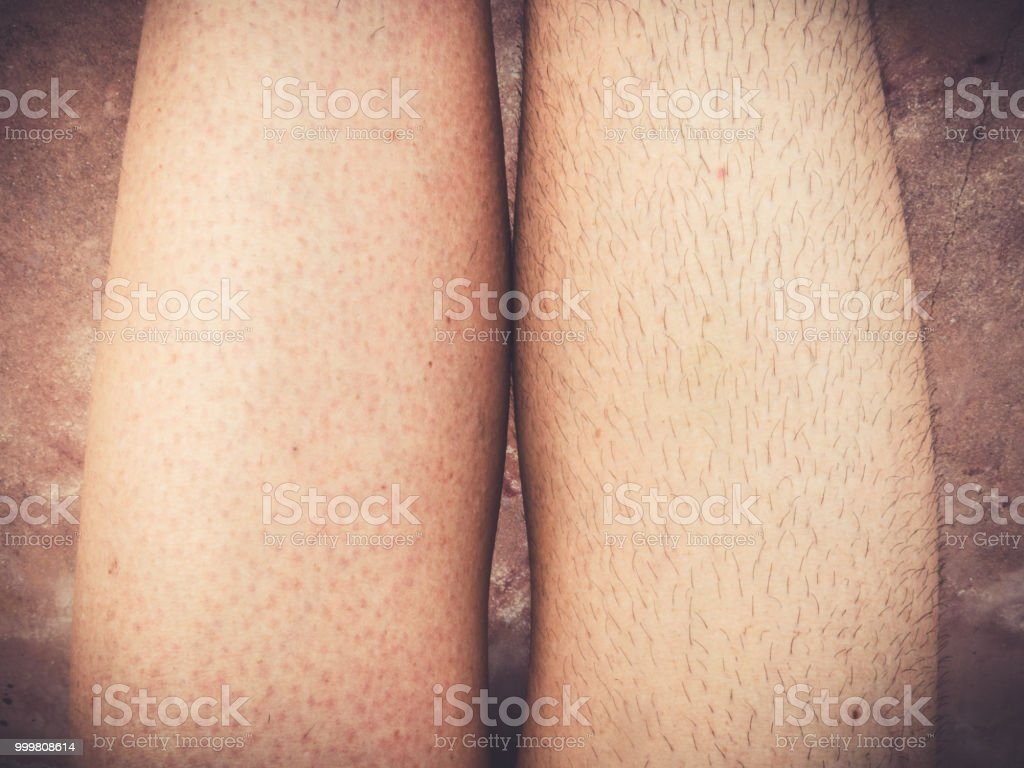 Determination and persistence waxing legs stock photo