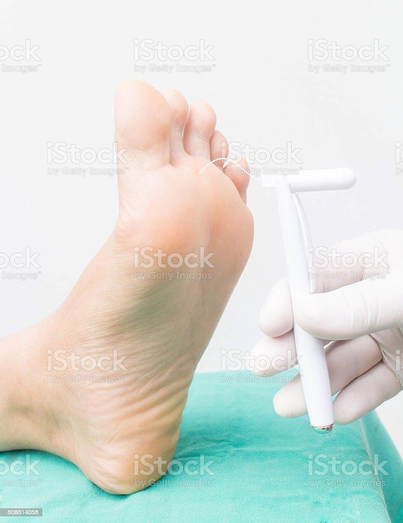 diabatic foot skining neuropathy stock photo