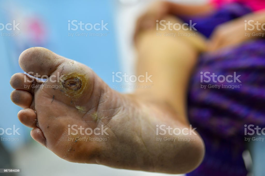 diabetes foot at sole of foot and sole of big toe, foot screen in diabetes patient for prevent complication stock photo