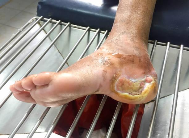 diabetes foot - gangrena fotografías e imágenes de stock