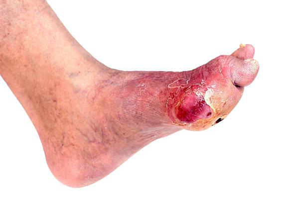 infección de pie diabético - enfermedades de los pies fotografías e imágenes de stock