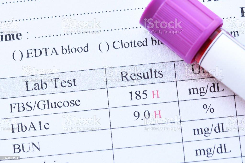 Diabetes test results stock photo