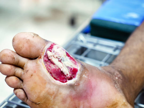 Diabetic foot infections,Diabetic wounds are often slow to heal require medical attention and monitoring stock photo