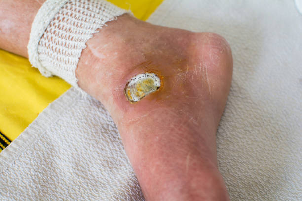 Diabetic Foot stock photo