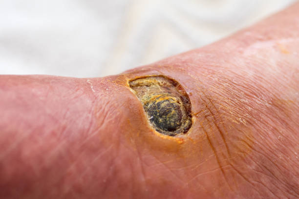 Best Infected Wound Stock Photos, Pictures & Royalty-Free Images