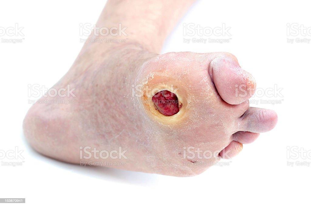 Diabetic Foot Ulcer stock photo