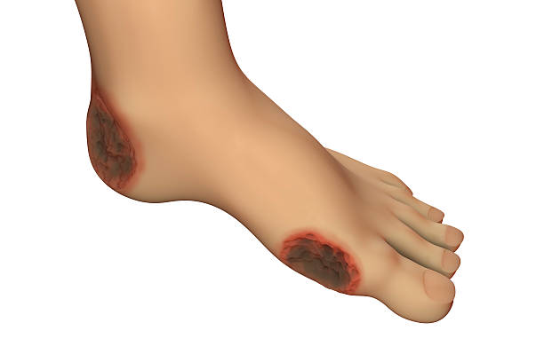 diabetic foot ulcer - gangrena fotografías e imágenes de stock