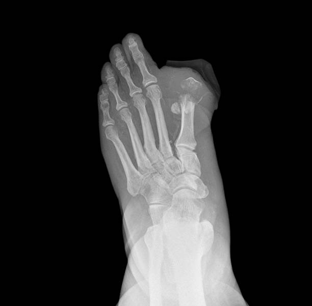 Diabetic foot xray showing an amputated toe and osteomyelitis stock photo