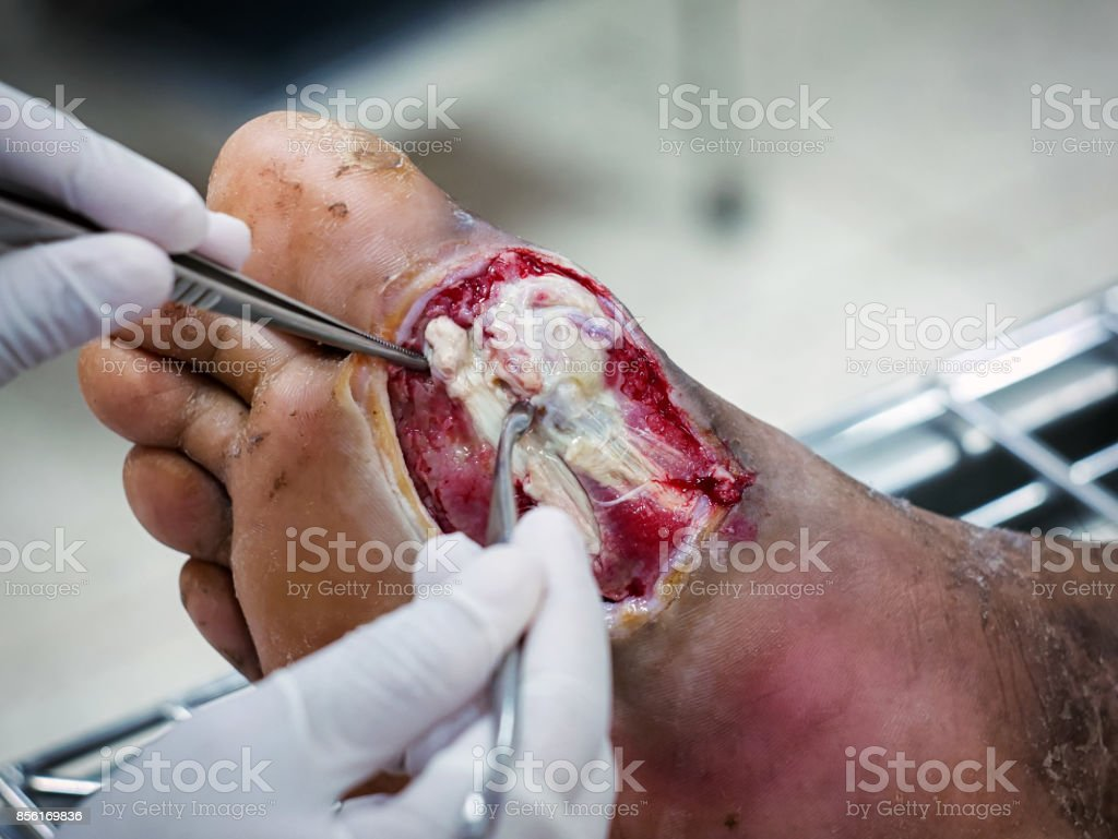 Diabetic wounds are often slow to heal require medical attention and monitoring,Diabetic foot infections stock photo