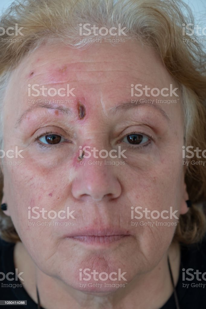 diabetic wounds on face stock photo