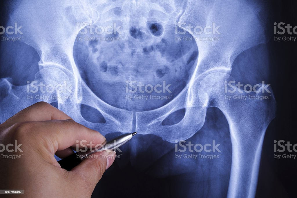 diagnosing human Pelvis x-ray stock photo