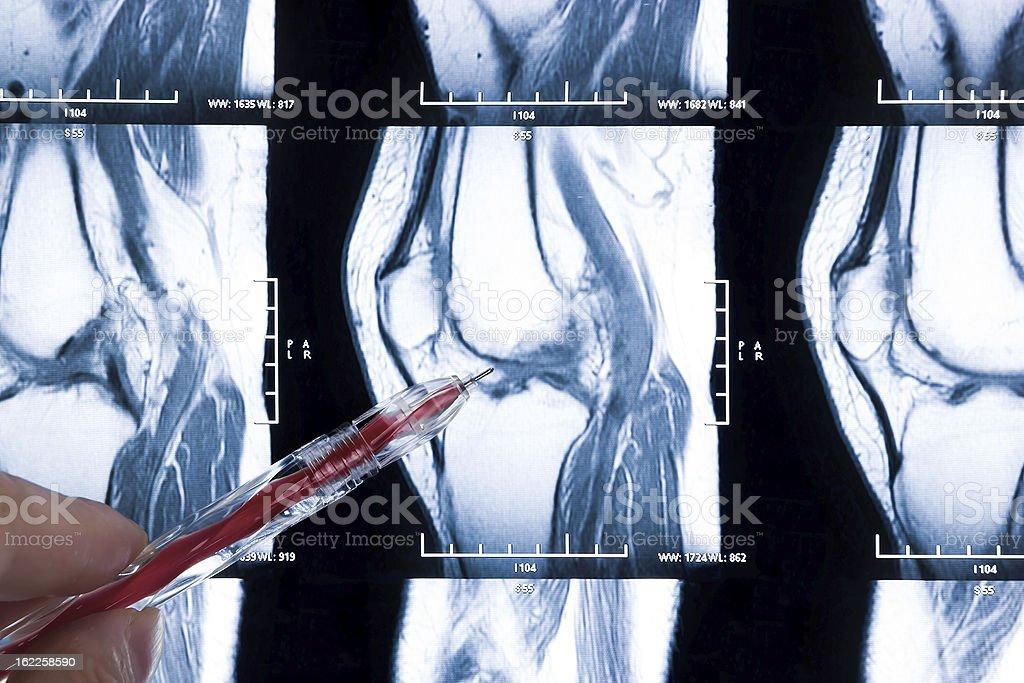 diagnosing knee MRI - damage of cross and meniscus injury stock photo