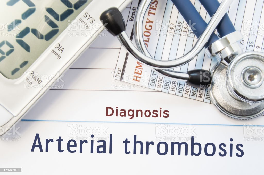 Diagnosis Arterial thrombosis. Stethoscope, hematology blood test result and digital tonometer lie on sheet of paper with printed title diagnosis of vascular disease Arterial thrombosis stock photo