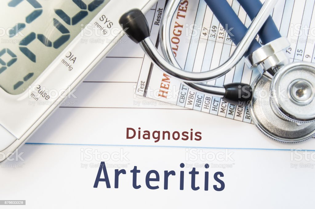 Diagnosis Arteritis. Stethoscope, hematology blood test result and digital tonometer lie on sheet of paper with printed title diagnosis of vascular disease Arteritis stock photo
