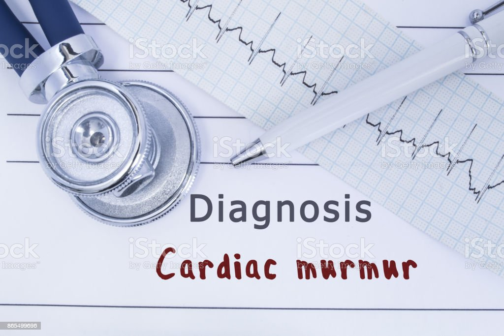 Diagnosis Cardiac murmur. Stethoscope or phonendoscope together with type of ECG lie on medical history with title diagnosis Cardiac murmur. Medical concept for cardiology and internal medicine stock photo