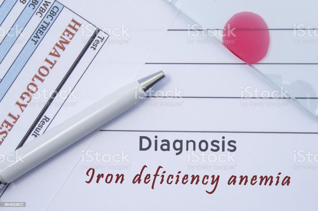 Diagnosis Iron deficiency anemia. Written by doctor hematological diagnosis Iron deficiency anemia in medical report, which are result of blood test and glass slide with blood smear for lab research stock photo
