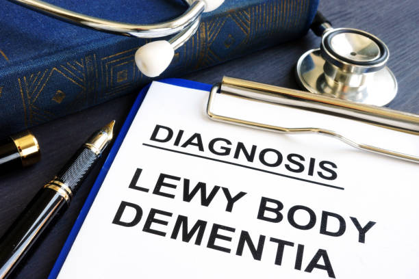 Diagnosis Lewy body dementia on a hospital desk. stock photo