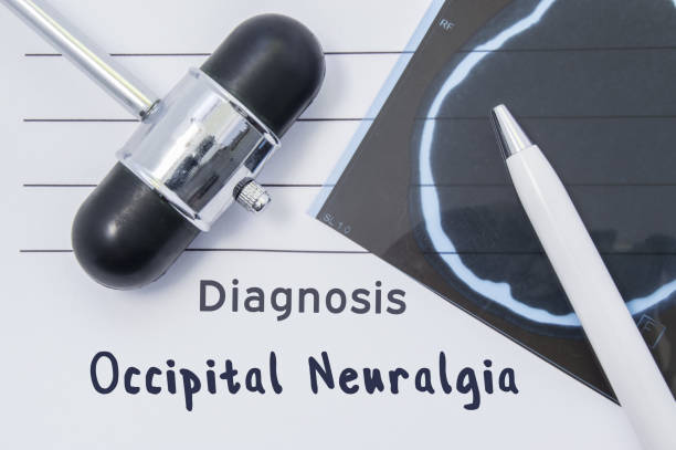 Diagnosis Occipital Neuralgia. Written medical report, which indicated neurological diagnosis Occipital Neuralgia, surrounded by MRI of brain and reflex hammer on desk in doctor office Diagnosis Occipital Neuralgia. Written medical report, which indicated neurological diagnosis Occipital Neuralgia, surrounded by MRI of brain and reflex hammer on desk in doctor office occipital lobe stock pictures, royalty-free photos & images