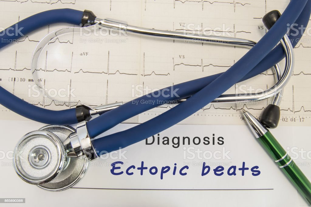 Diagnosis of Ectopic beats. Stethoscope and recorded electrocardiogram  on paper lying horizontally inscription diagnosis Ectopic beats on desk in office of cardiologist stock photo