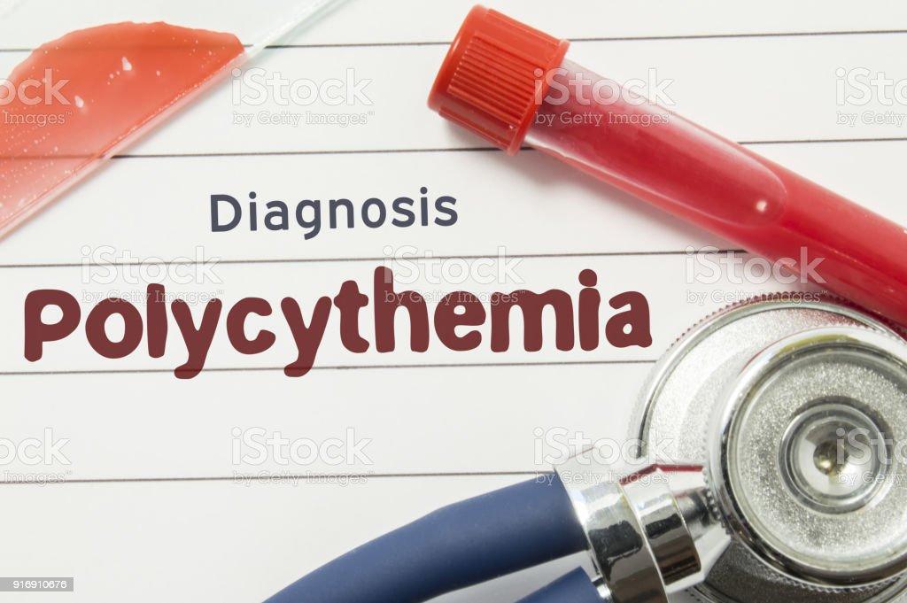 Diagnose Der Polyzythämie Medizinische Buch Mit Text Header ...