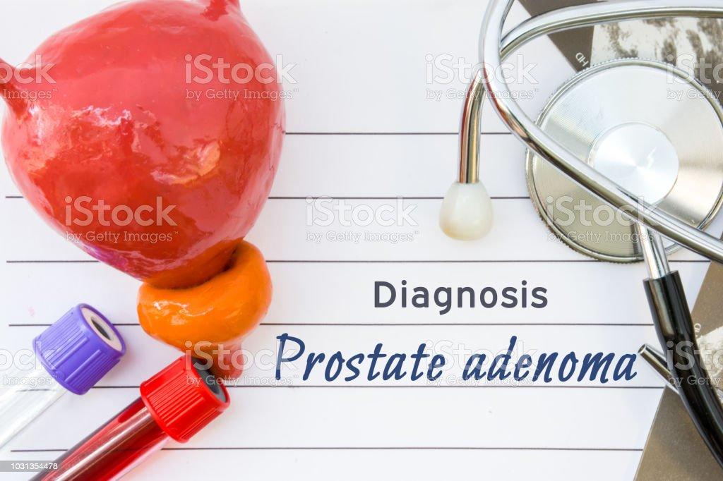 imágenes de adenoma de próstata por ultrasonido