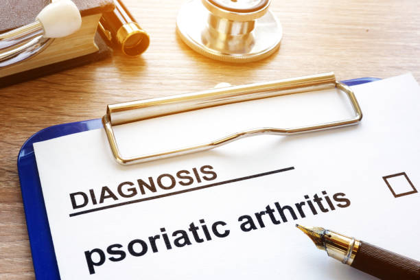 diagnosis psoriatic arthritis and clipboard on a desk. - artrite foto e immagini stock