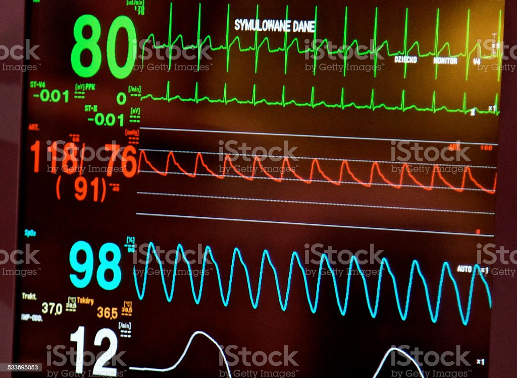 EKG ECG diagnosis. Recording heart rhythm electrical activity. Simulation stock photo