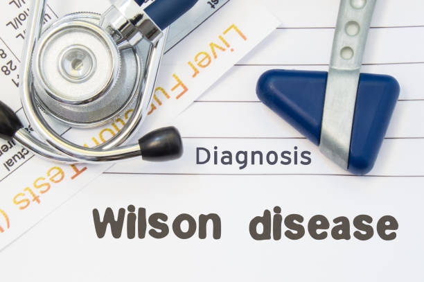 wilson disease diagnose. neurologische hammer, stethoskop und leber labor testen auf hinweis mit titel der wilson krankheit liegen. konzept für neurologie und gastroenterologie - own wilson stock-fotos und bilder