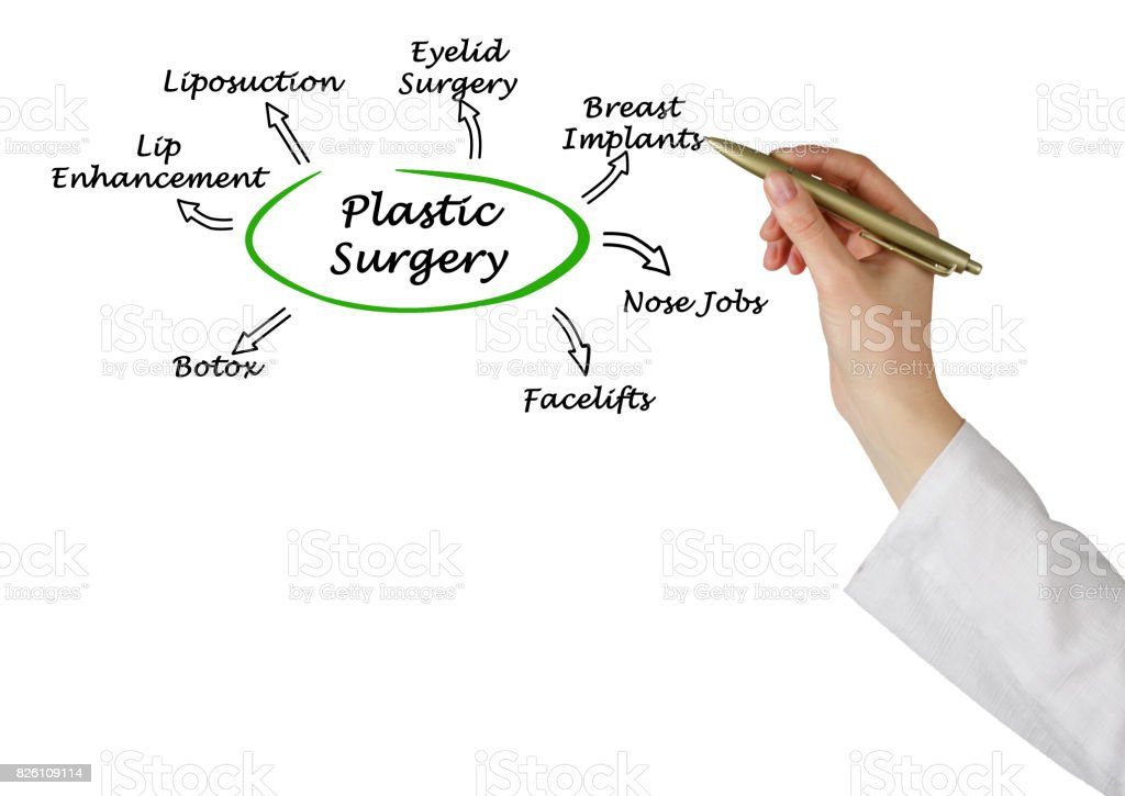 Diagram Of Plastic Surgery Stock Photo - Download Image Now
