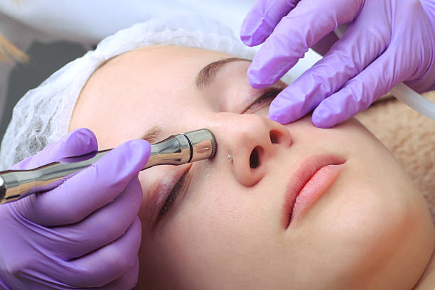 Diamond microdermabrasion, peeling cosmetic. woman during a micr ストックフォト