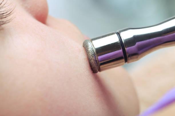ダイヤモンド マイクロダーマブレーション、ピーリング化粧品。ビューティー サロンのマイクロダーマブレーションの治療中に女性 ストックフォト